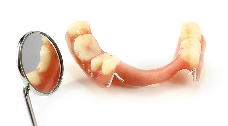 Dentures Penrith | Penrith Dentures – Smile Dental Team