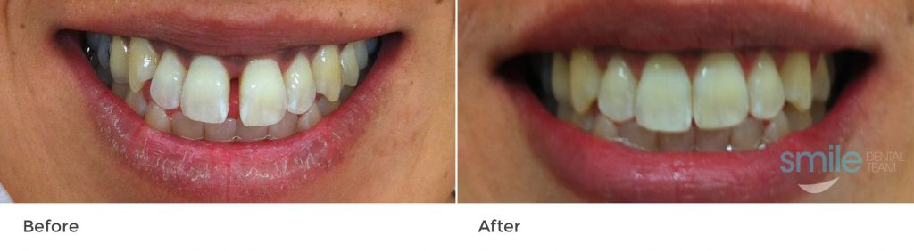 Orthodontic Braces Before and After photo